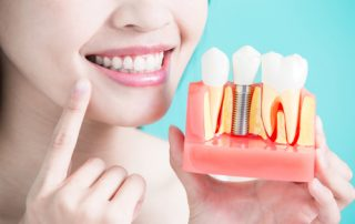 How To Keep Your Dental Implants from Failing?