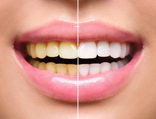 Will Teeth Whitening work for me?