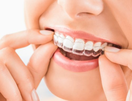 Why Invisalign is right for you