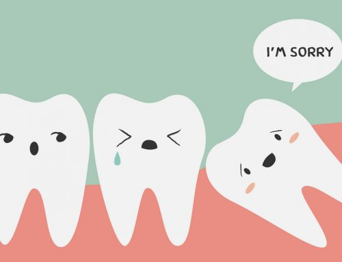 Wisdom Teeth Options