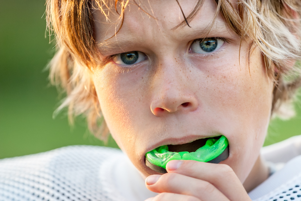 Custom Mouth Guards vs. Store Bought