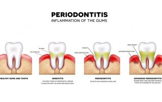 What is the difference between gingivitis and periodontitis