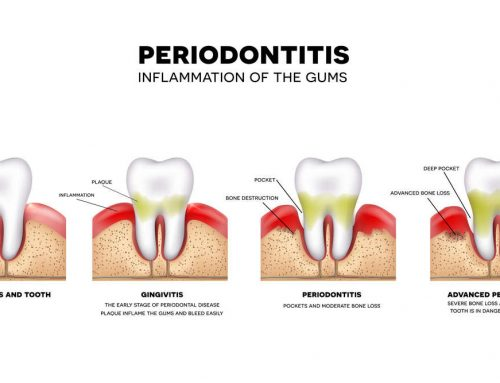 What is the difference between gingivitis and periodontitis?