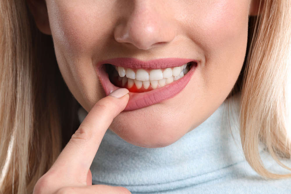 Treatment Options for Gingivitis and Periodontitis