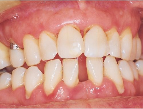 COVID-19 Patients With Periodontitis Face Greater Risk of Dying