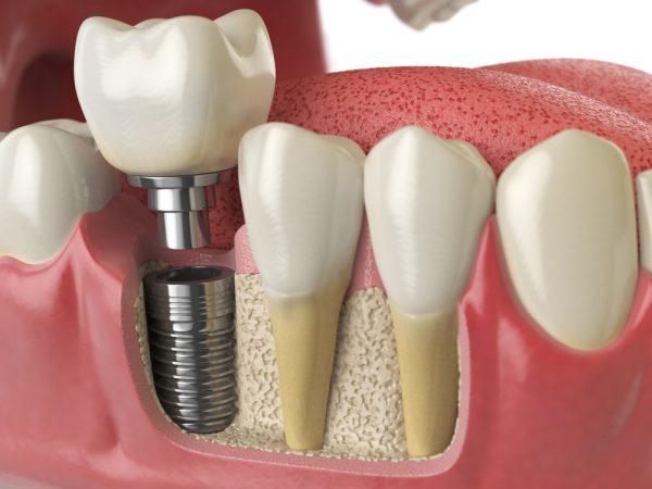 Implantes Dentales de un Día: ¿Realidad o Ficción?