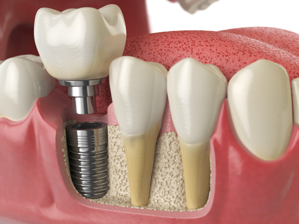 San Diego Dental Implant Facts