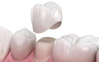 3D illustration of dental crown - dental crown fell out