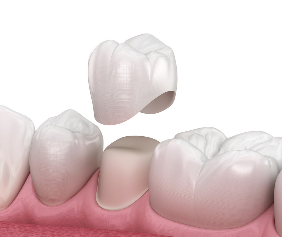 3D illustration of dental crown - dental crown fell out