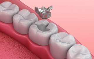 3D illustration of dental filling - What to Do if Your Filling Fell Out