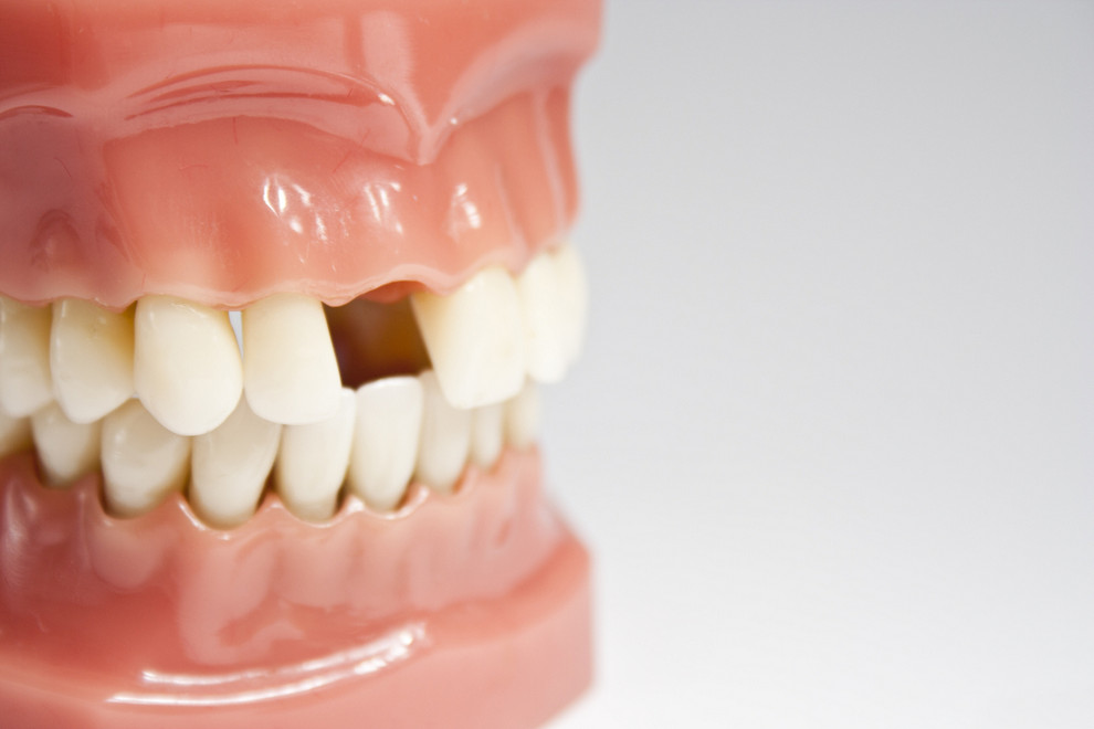 Artifical jaw with missing tooth