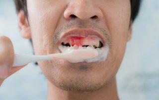Bleeding gums from brushing teeth