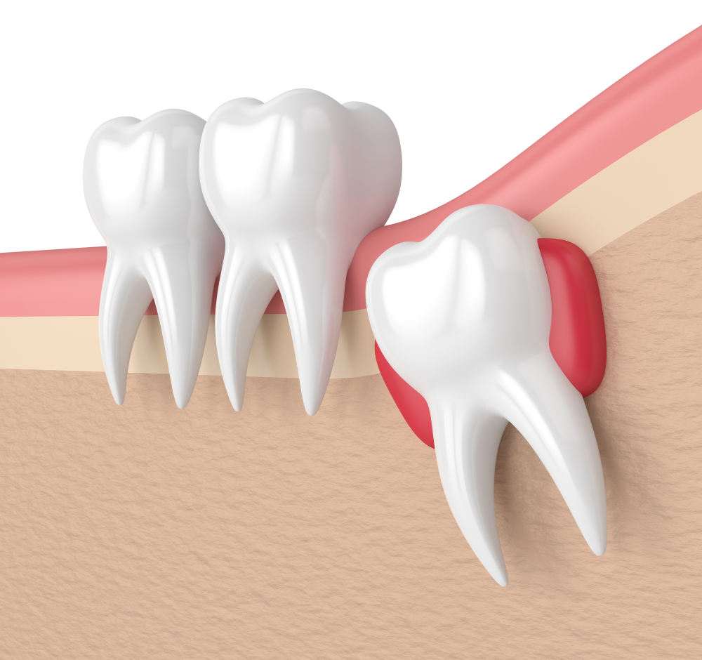 Inflammation Around the Gums