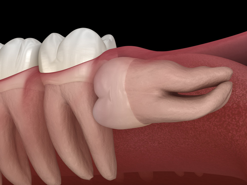 wisdom tooth impacting teeth (Common Signs You Need to Get Wisdom Teeth Removed)