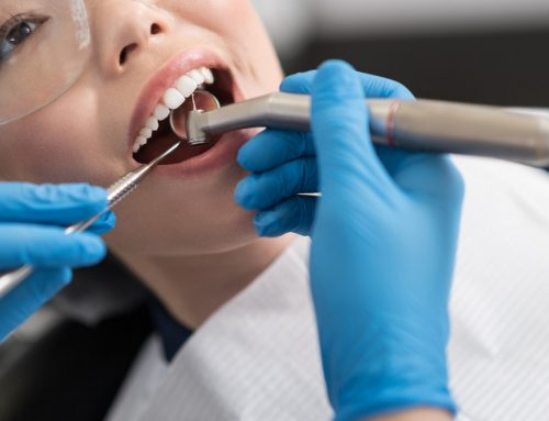 Can You Heal a Cavity?