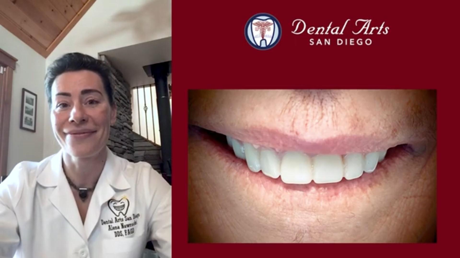 Complete Dental Transformation